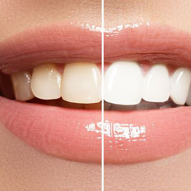Teeth Whitening Mandarin